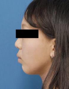 DSC04257顎左側面