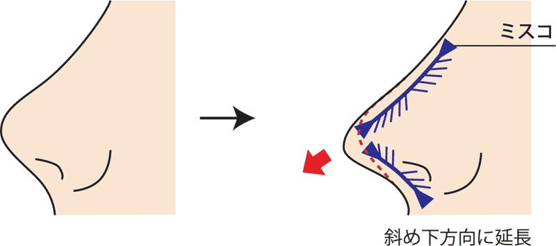 MISKOミスコ斜め下方向に糸挿入図