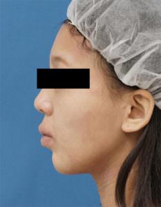 DSC05110顎左側面