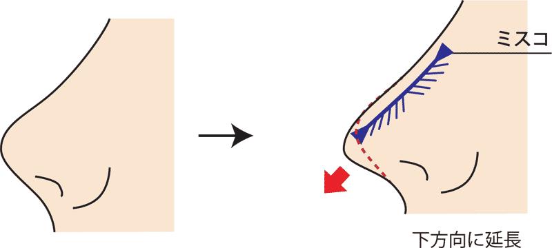 MISKOミスコ下方向に糸挿入図