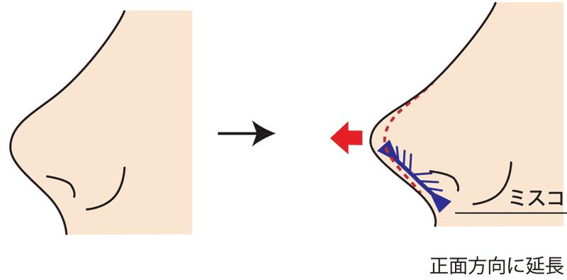 MISKOミスコ正面方向に糸挿入図