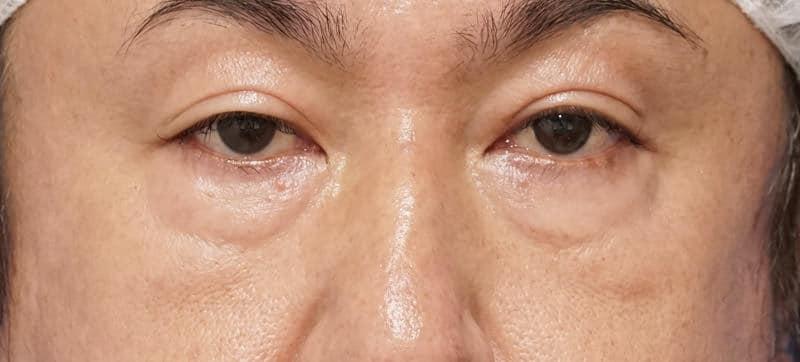 目の下脂肪取り、目の下コンデンス脂肪注入 1ヶ月後のBefore写真