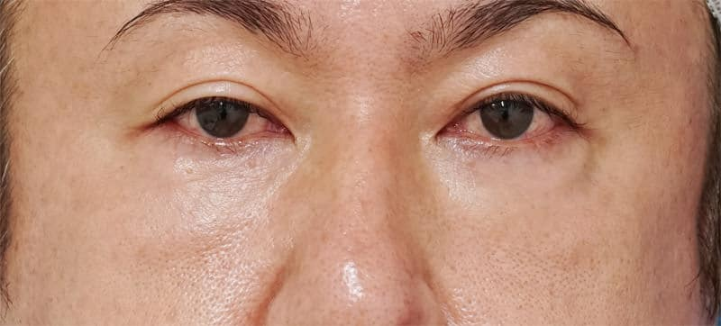 目の下脂肪取り、目の下コンデンス脂肪注入 1ヶ月後のAfterの写真