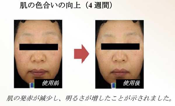 ベビーエッセンス肌の色合い症例