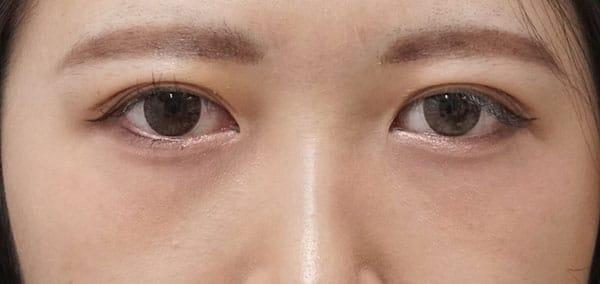 目の下の脂肪とり 手術直後、1ヶ月後のAfterの写真