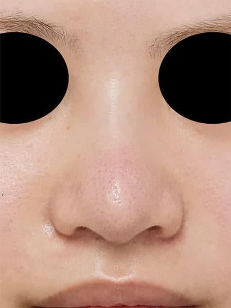 他院鼻尖形成・軟骨移植後再手術 2か月後のAfterの写真