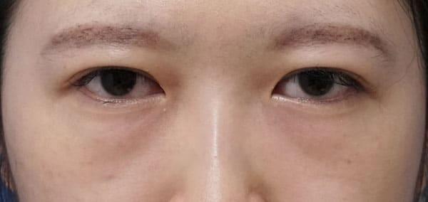 目の下の脂肪とり 手術直後、1ヶ月後のBefore写真