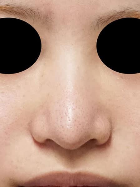 他院鼻尖形成・軟骨移植後再手術 2か月後のBefore写真