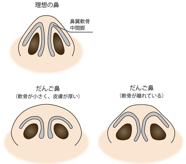 団子鼻タイプ