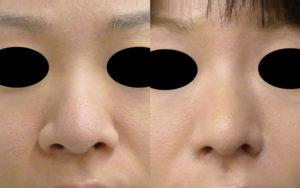 鼻尖縮小+小鼻縮小の症例