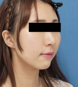 DSC03639顎右ナナメ