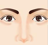 鼻正面2 鼻整形