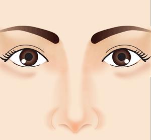鼻筋正面 鼻整形