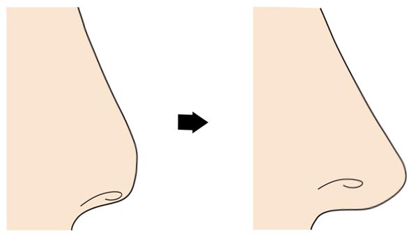 軟骨移植の効果