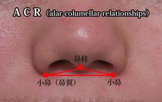 ACR 鼻整形