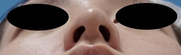 切らない鼻先縮小 術前⇒一か月後のBefore写真