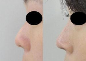 鼻尖軟骨移植+鼻尖縮小症例