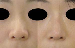 鼻尖軟骨移植+鼻尖縮小症例正面