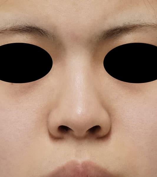 鼻中隔延長、鼻尖形成、I型プロテーゼ 3か月後のBefore写真