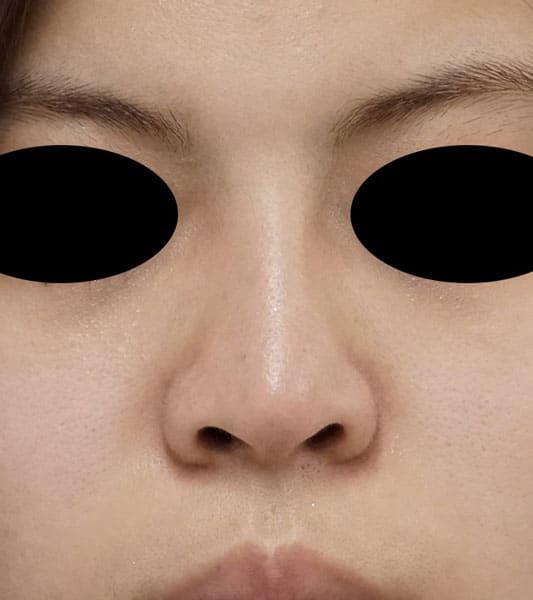 鼻中隔延長、鼻尖形成、I型プロテーゼ 3か月後のAfterの写真