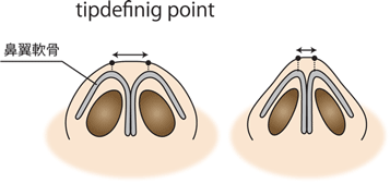 tip-defining-point団子鼻軟骨 鼻整形