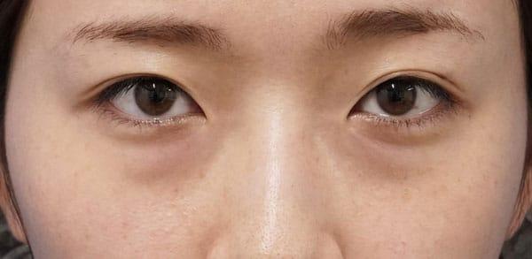 目の下脂肪取り、コンデンス脂肪注入(目の下) 手術直後~1ヶ月後のBefore写真