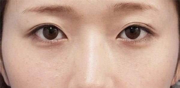 目の下脂肪取り、コンデンス脂肪注入(目の下) 手術直後~1ヶ月後のAfterの写真