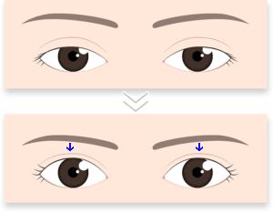 眼瞼下垂で眉が下がるイメージ