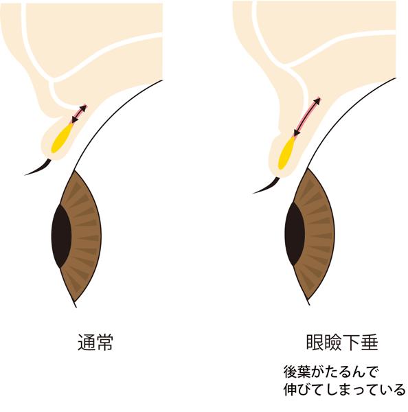 眼瞼下垂後葉のたるみの図