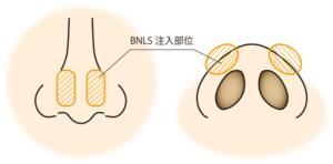 鼻BNLS注入部位