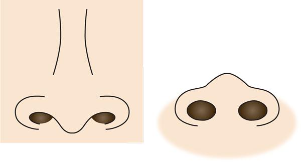 張り出した小鼻