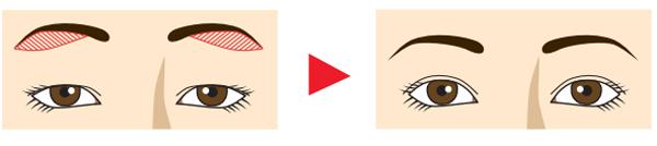 眉下切開の変化のイメージ
