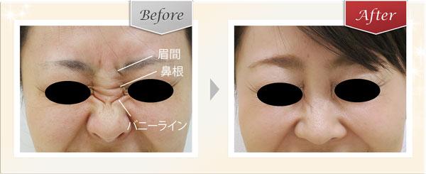 鼻根・バニーライン症例写真