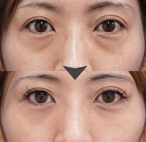 目の下の脂肪取りと脂肪注入を同時に行った症例