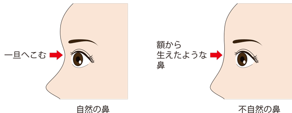 鼻根ヒアルロン酸 不自然な鼻