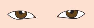 眼瞼下垂、黒目が隠れる