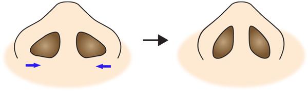 鼻翼縮小(フラップ法)変化