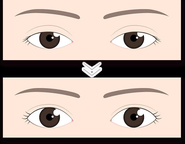 眼瞼下垂が改善したイラスト