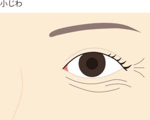 目の下、目周りの小じわ