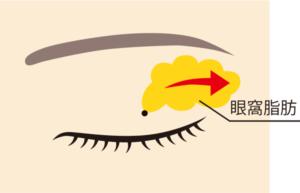 眼窩脂肪除去