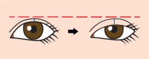 眼瞼下垂、二重広くなる
