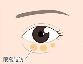 目の下の眼窩脂肪