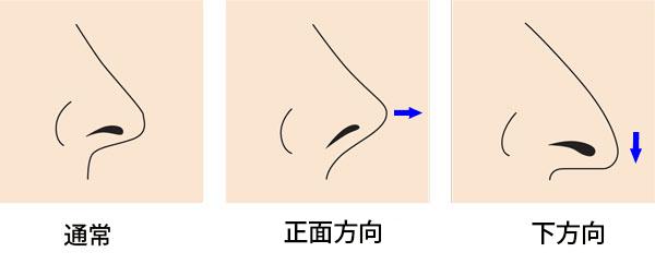 鼻の側面高くする方法