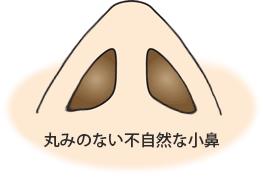 丸みのない不自然な小鼻