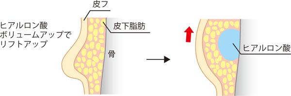 ヒアルロン酸ボリュームアップによるリフトアップ