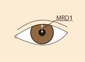 眼瞼下垂MRD-1