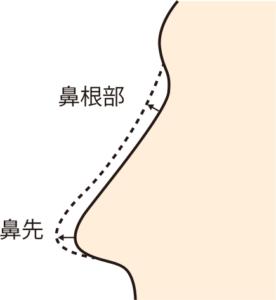 鼻を高くする部位
