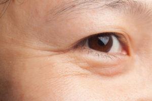目尻のシワ画像