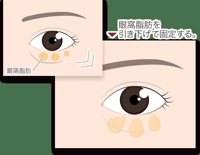 眼窩脂肪を引き下げて固定する。