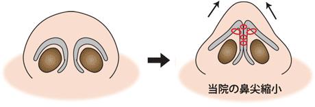 鼻翼軟骨の鼻尖縮小の変化